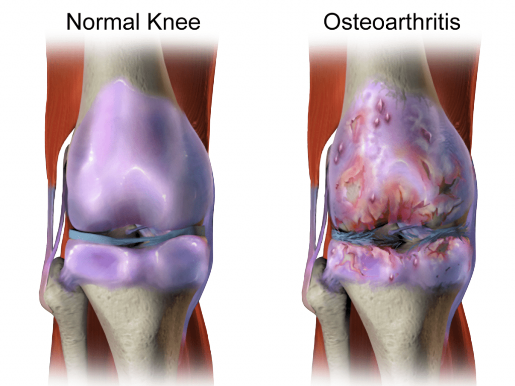 best joint pain supplement for knees