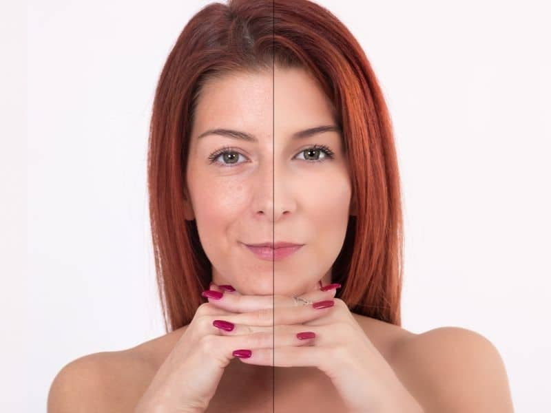 What are the benefits of taking collagen supplements?