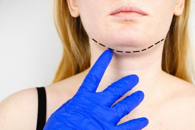 Lipolysis To Get Rid of Neck Fat