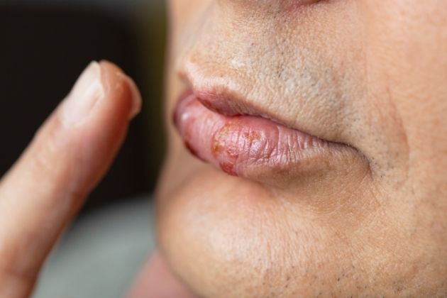Why is Oral Herpes a Big Deal
