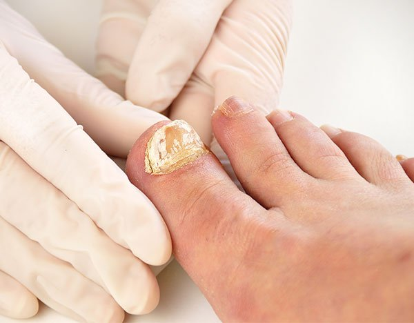 nail-infection-treatment